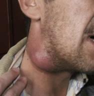 Cara mengobati benjolan di leher kanan